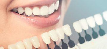 cosmetic dentistry happy valley oregon,